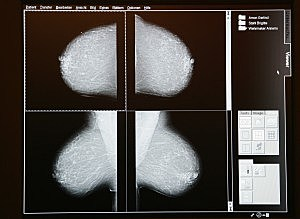Mammamobil Offers Mobile Mammogram Service
